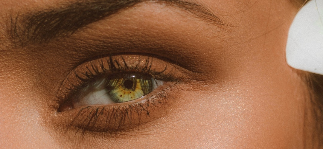 Cara Tepat Mengatasi Kelopak Mata Bengkak